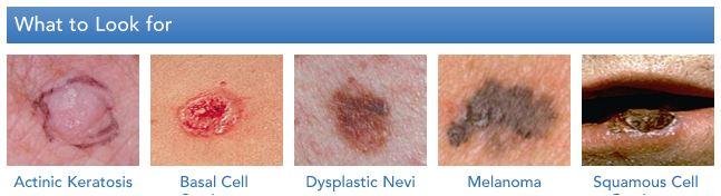 skincancers